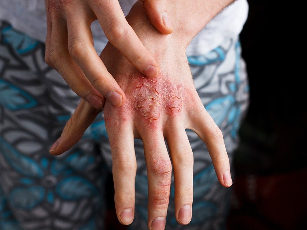 Eczema on back of hands