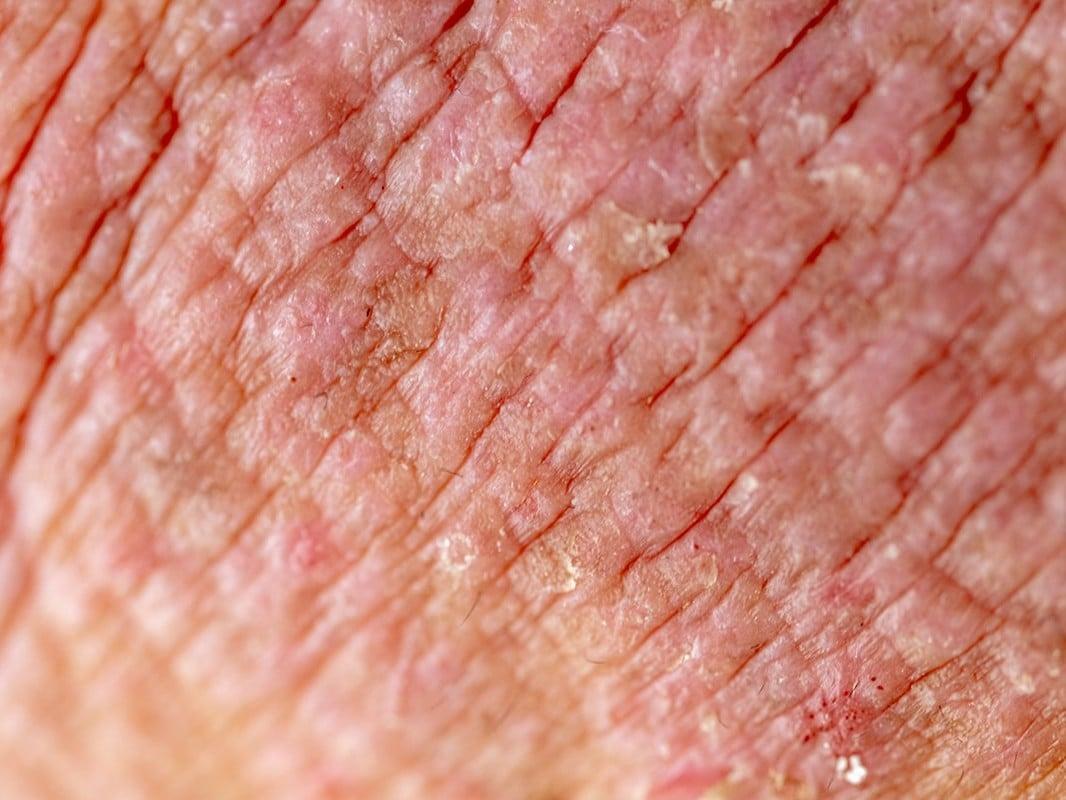 Close up photo of skin Eczema