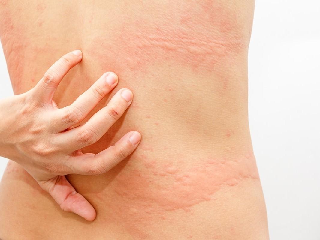 Photo of Hives rash on back