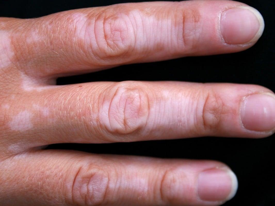 Picture of Vitiligo on the fingers