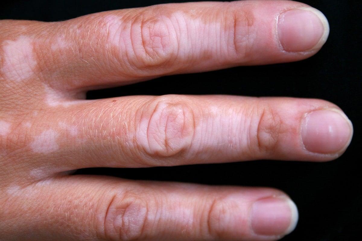 Vitiligo Symptoms Causes Treatment And Photos