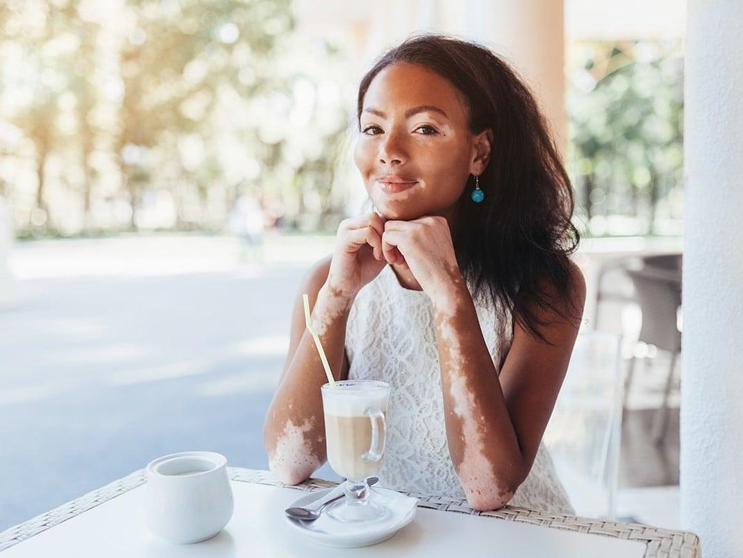Photo of a woman with Vitiligo