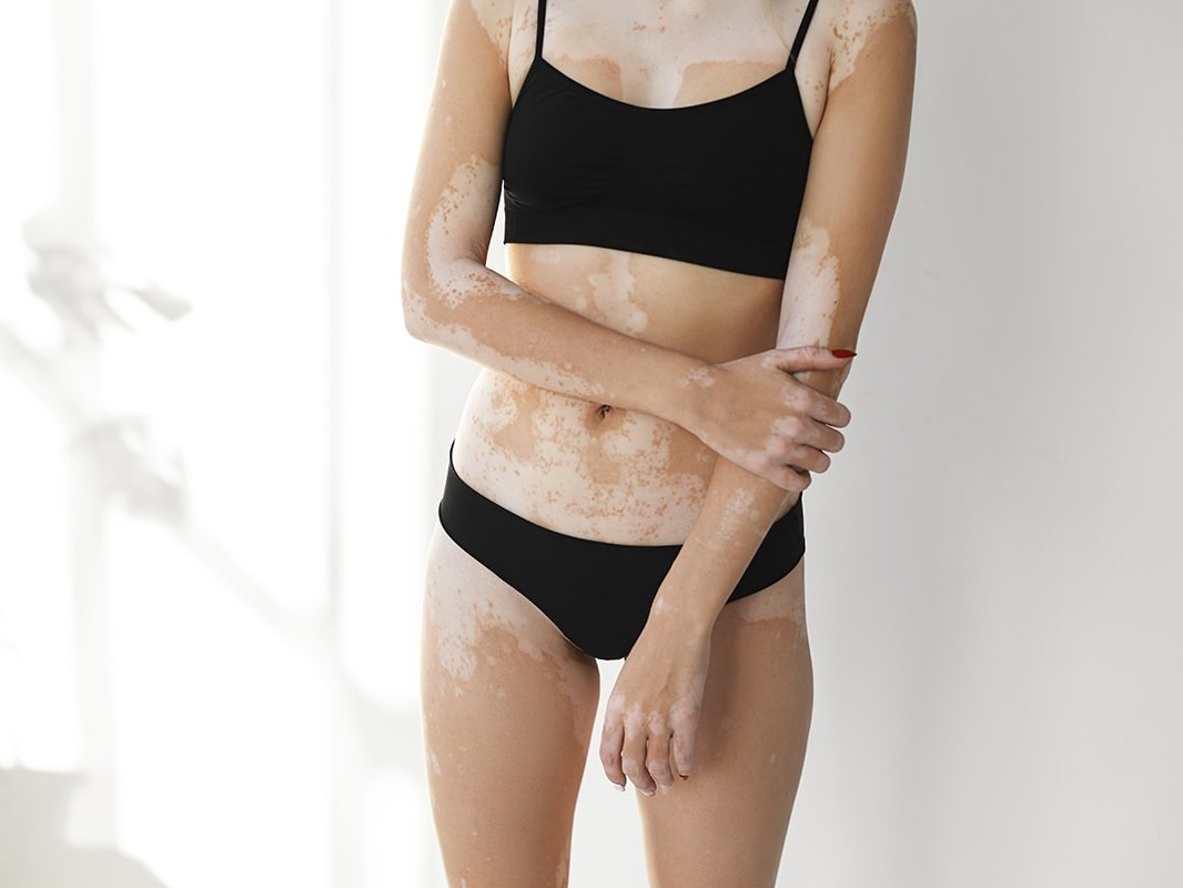 Photo of Vitiligo on a woman's body