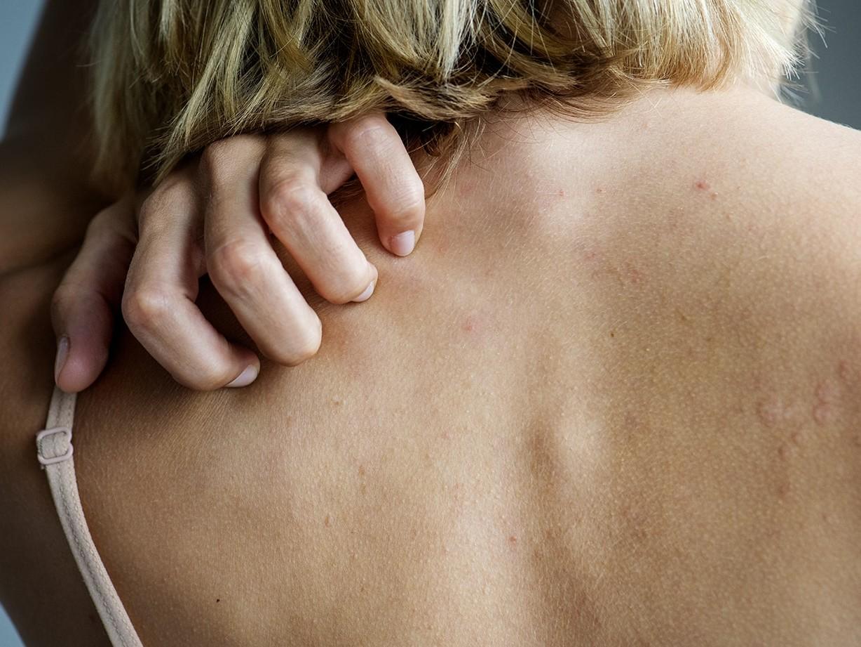 Woman scratching skin rash on back