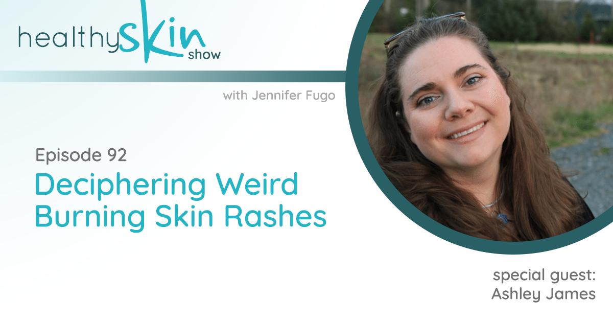092: Deciphering Weird Burning Skin Rashes w/ Ashley James