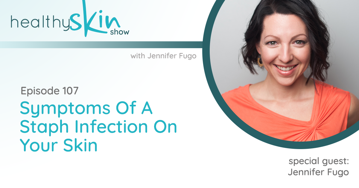 107: Symptoms Of A Staph Infection On Your Skin