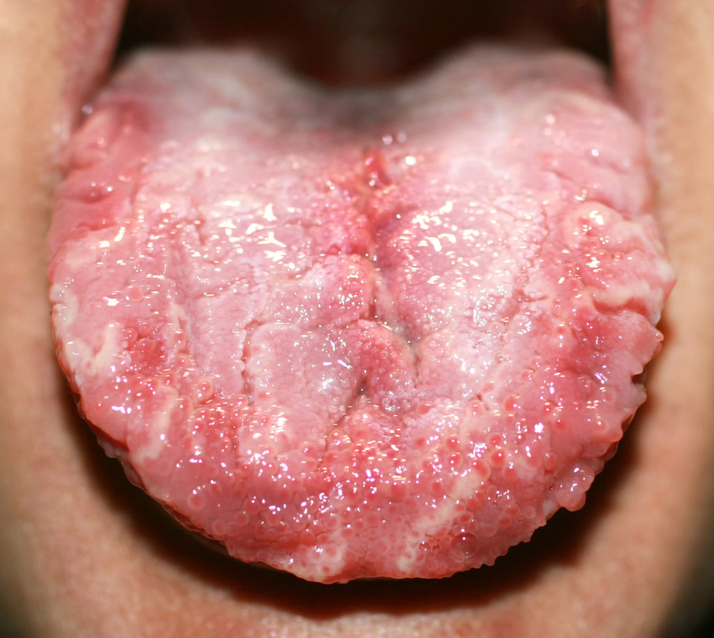 man sticking out his tongue showing geographic tongue