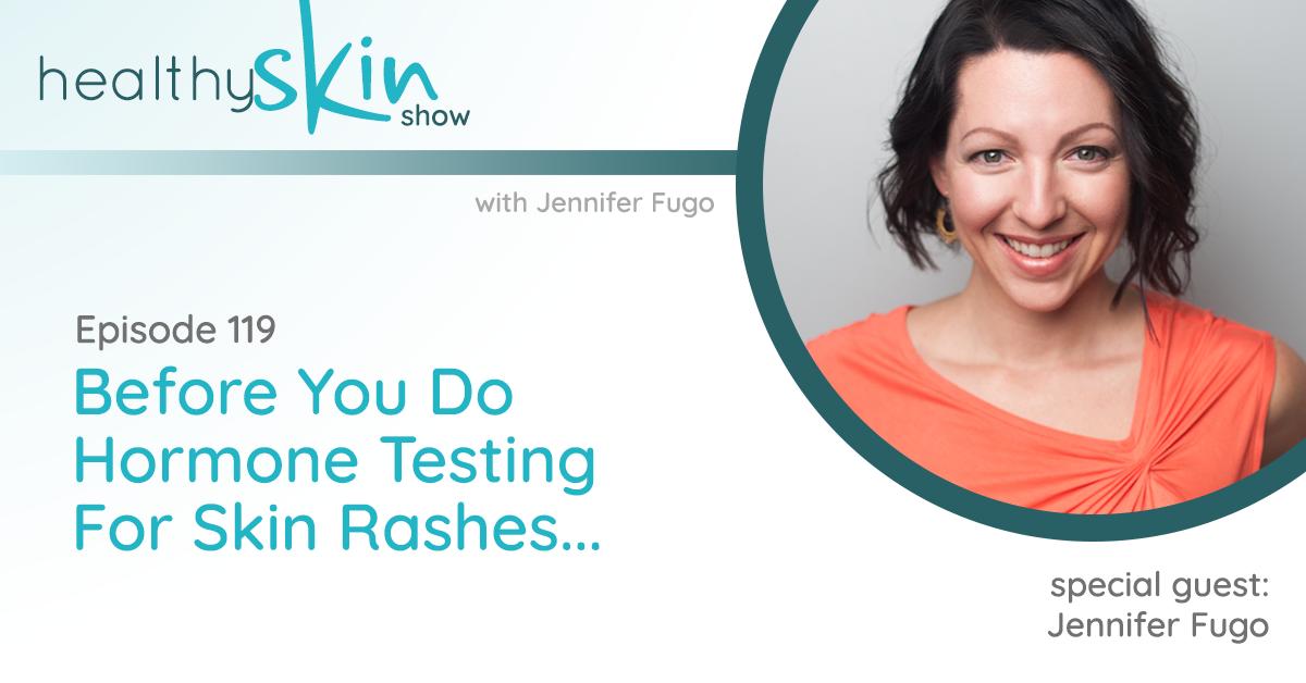 119: Before You Do Hormone Testing For Skin Rashes...