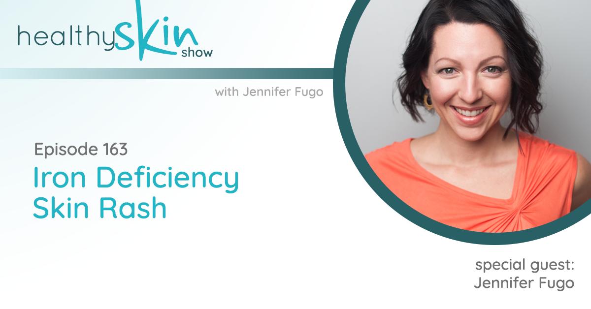 163: Iron Deficiency Skin Rash