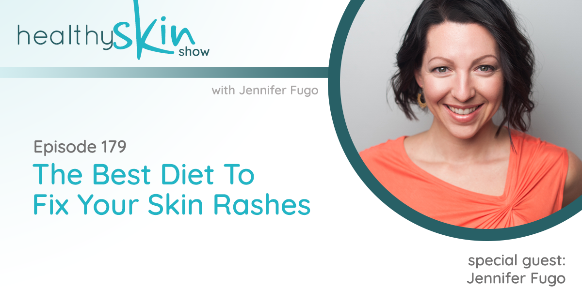 179: The Best Diet To Fix Your Skin Rashes